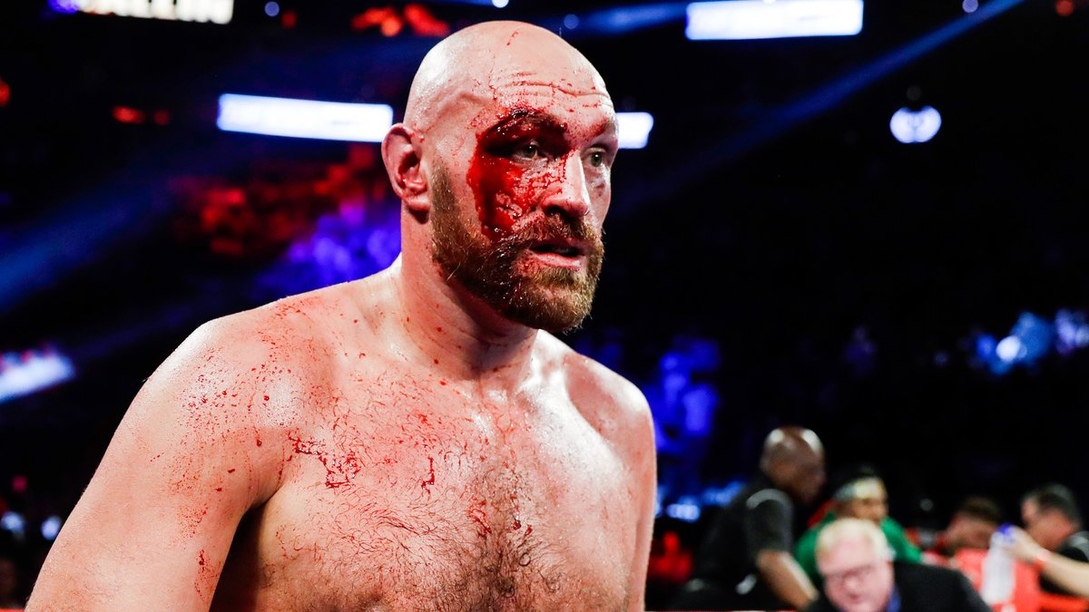 Boxe : Tyson Fury fait un pas de plus vers l'UFC !